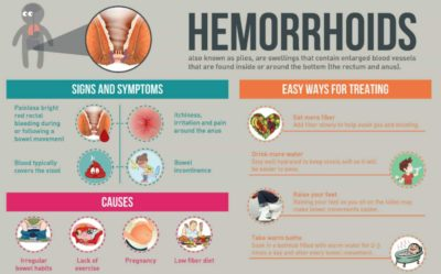 Illustration of How To Deal With Pain Due To Hemorrhoids During Pregnancy?