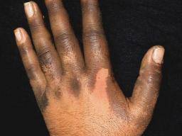 Illustration of Black Spots On The Hands, Back, Neck And Stomach?