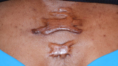 Illustration of How To Deal With Wounds In The Keloid?