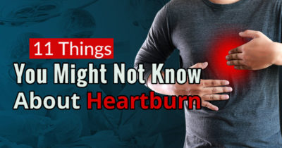 Illustration of Heartburn That Does Not Heal?