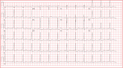 Illustration of Dizziness And Palpitations After Impact?