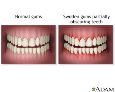 Illustration of Swollen Gums And Sore Throat?