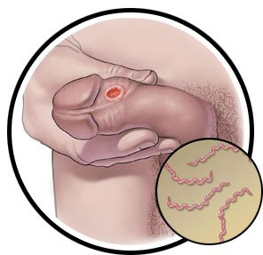 Illustration of Masturbation After Syphilis Injection, Will It Interfere With The Performance Of The Drug?
