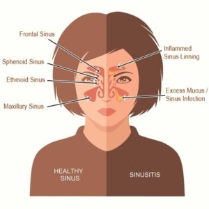 Illustration of What Should I Do If I Suffer From Sinusitis?