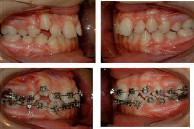Illustration of Can A Buccal Tube Improve Tooth Structure?