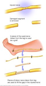Illustration of Can The Nerve Be Cured Completely?