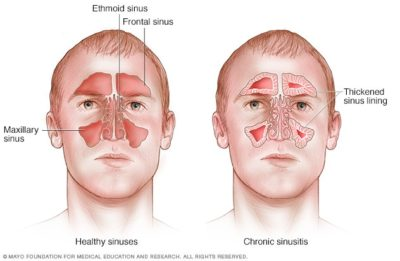 Illustration of The Cause Of Nasal Congestion Is Chronic?