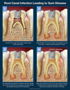 Illustration of The Cause Of Pain In The Teeth Or Gums?