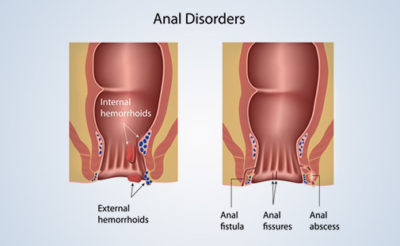 Illustration of Foods That Can Launch Bowel Movements After Anal Polyps?
