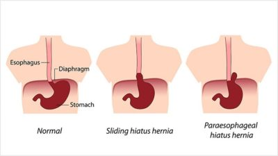 Illustration of Treatment And Prevention Of Hiatal Hernias?