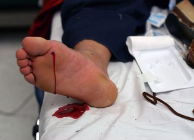 Illustration of Handling Of Wounds Caused By Stepping On Broken Glass?