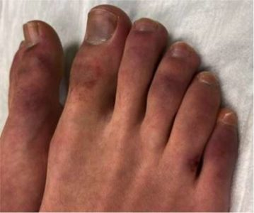 Illustration of Fever And Swollen Feet In Children?