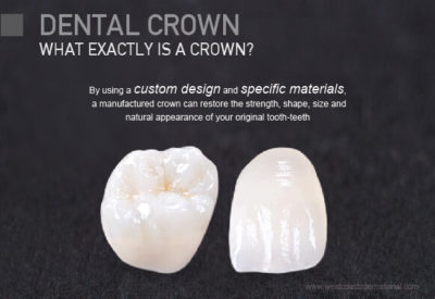 Illustration of Rules For Wearing Dental Crowns?