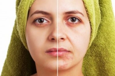 Illustration of The Face Feels Hot After Using Whitening Cream?