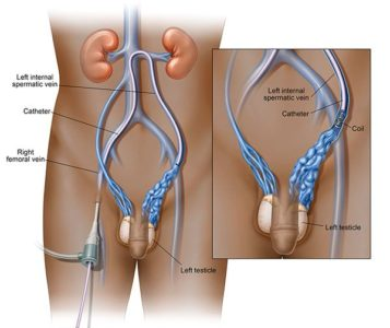 Illustration of Inside The Left Testis There Is Vein And It Hurts?
