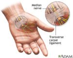 Nerve Disorders In The Hands?