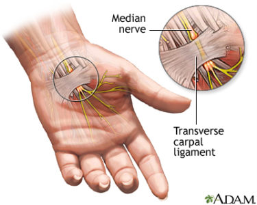 Illustration of Nerve Disorders In The Hands?