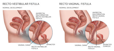 Illustration of Baby Defecates Through The Anal Canal And Vagina?