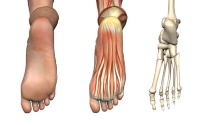 Illustration of Explanation Of Ligamentous Laxity (ligaments Are Too Loose)?