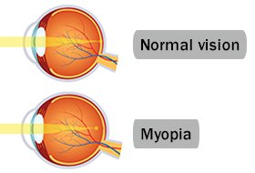 Illustration of The Cause Of The Left Eye Becomes Nearsighted?