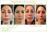 Use Of Hydroquinone?