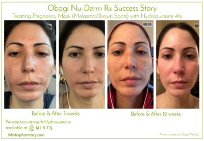 Illustration of Use Of Hydroquinone?