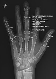 Illustration of Explanation Of X-ray Results In Children Aged 6 Years?
