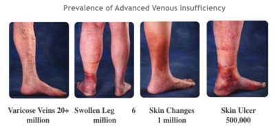 Illustration of What Are The Symptoms Of Varicose Veins?