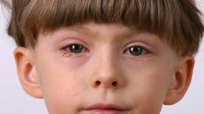 Illustration of Eye Pain For 3-year-old Children And Swelling?