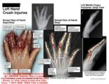 The Nerves Of The Fingers Affected By Foreign Objects?