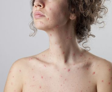 Illustration of Chicken Pox That Never Heals?
