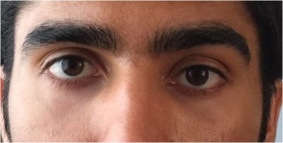 Illustration of The Position Of The Right And Left Eye Is Not Symmetrical, Is It Necessary To Surgery?