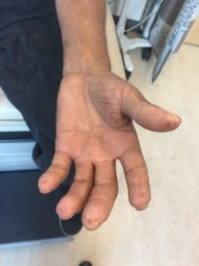 Illustration of Thickening Of The Skin On The Tip Of The Index Finger?