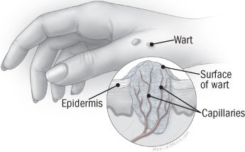 Illustration of How To Get Rid Of Warts?