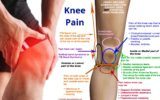 Joints In The Knee Hurt After Regularly Taking Anti-TB Drugs?