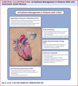 Illustration of Arrhythmias Have Been Implanted Surgery Whether It Can Recover Completely?