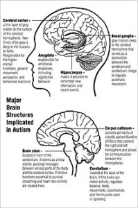 Illustration of Causes Of Autism?