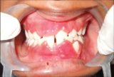 Can TB Drugs Cause Swollen Gums?