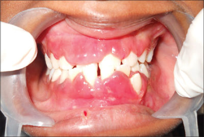 Illustration of Can TB Drugs Cause Swollen Gums?