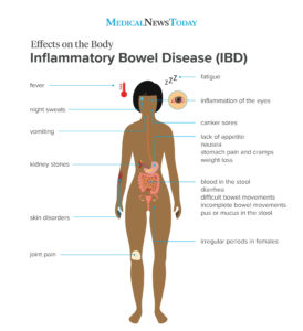 Illustration of Treatment Of Inflammation Of The Intestine At The Age Of 24 Years?