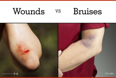 Illustration of Bruised Wounds Hit?