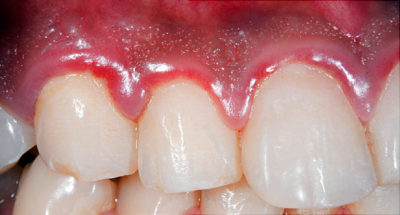 Illustration of Treatment For Gum Inflammation?