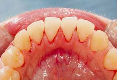 Illustration of Cavities Grow Flesh And Bleed After Squeezing?