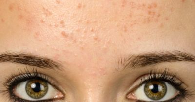 Illustration of Red Spots Like Pimples On The Forehead?