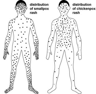 Illustration of Can Smallpox Be Transmitted To Adults?