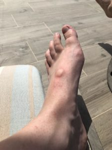 Illustration of Itching On The Feet Due To Mosquitoes?