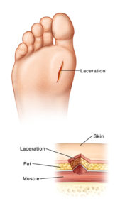 Illustration of The Duration Of Healing Of Stitches In The Foot?
