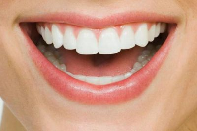 Illustration of Causes And Treat Teeth That Are Rocky And Brittle?