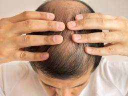 Illustration of Causes Of Hair Loss Accompanied By Headaches?