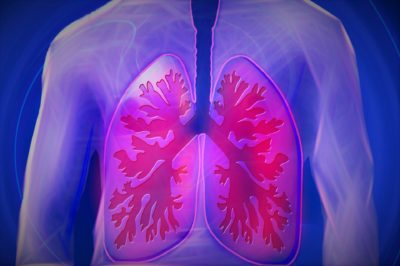 Illustration of Difference Between Tuberculosis And Wet Lung?